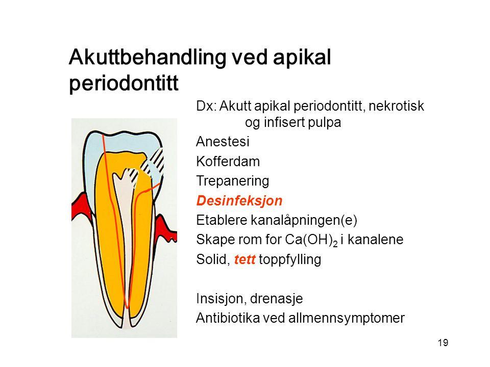 Akuttbehandling ved apikal periodontitt