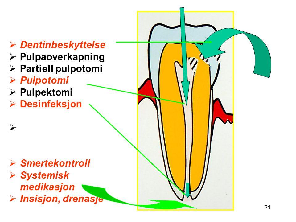Dentinbeskyttelse Pulpaoverkapning. Partiell pulpotomi. Pulpotomi. Pulpektomi. Desinfeksjon. Smertekontroll.