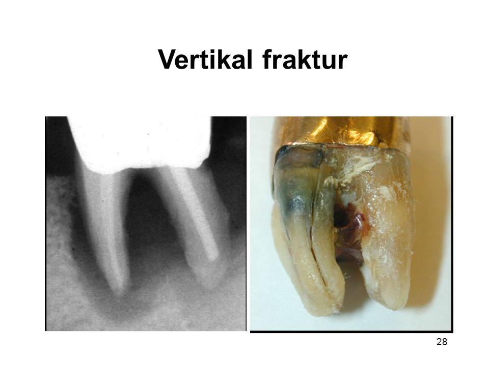 Vertikal fraktur