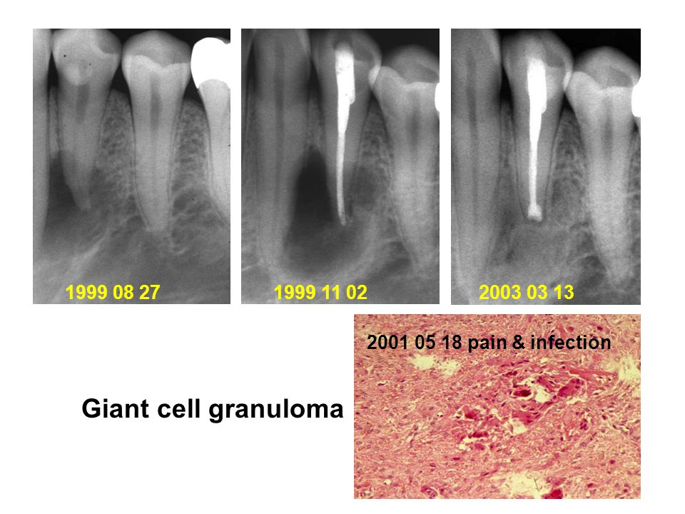 1999 08 27 1999 11 02 2003 03 13 2001 05 18 pain & infection Giant cell granuloma