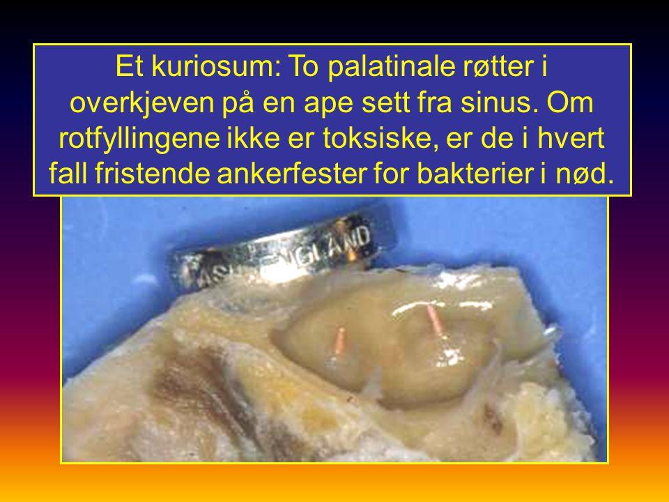 Et kuriosum: To palatinale røtter i overkjeven på en ape sett fra sinus.