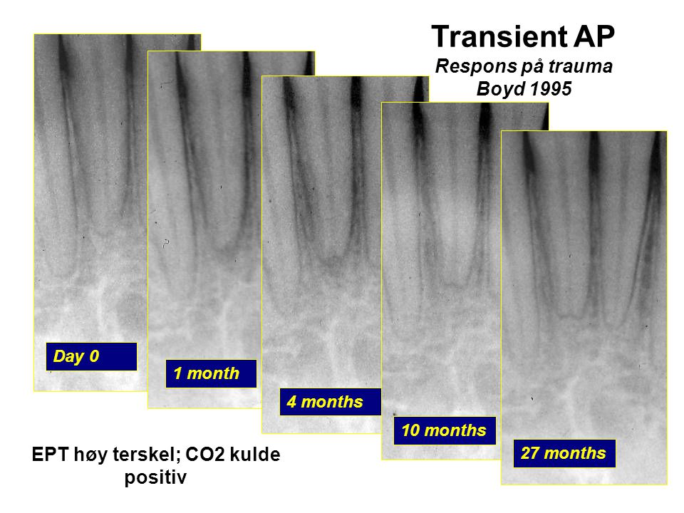 EPT høy terskel; CO2 kulde positiv