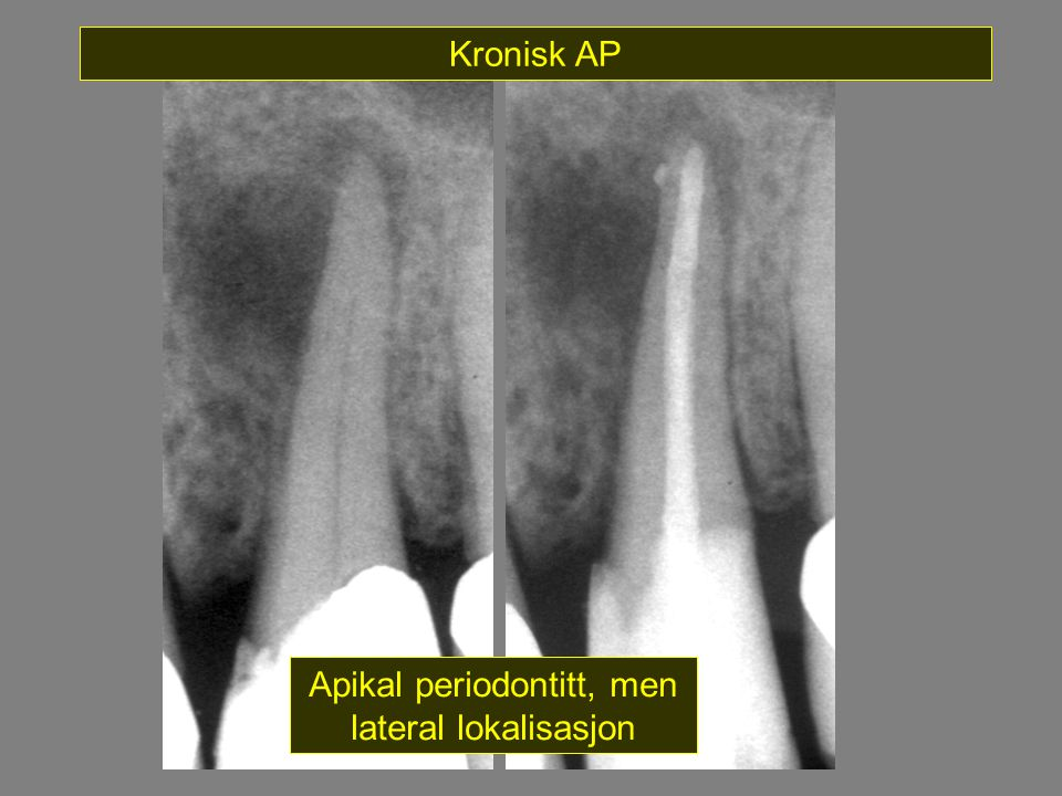 Apikal periodontitt, men lateral lokalisasjon