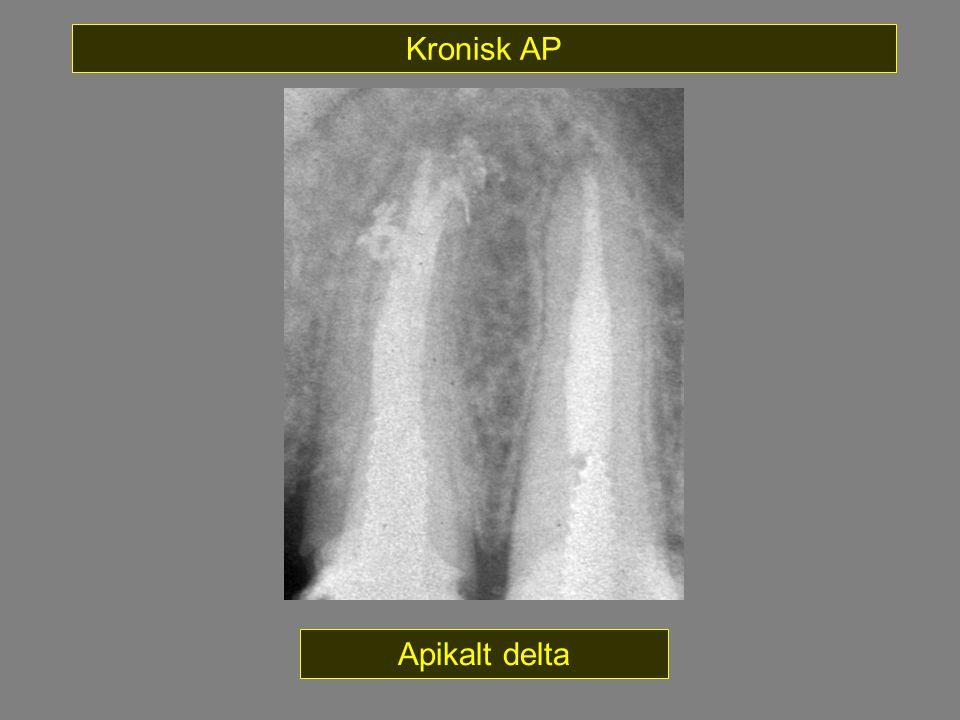 Kronisk AP Apikalt delta