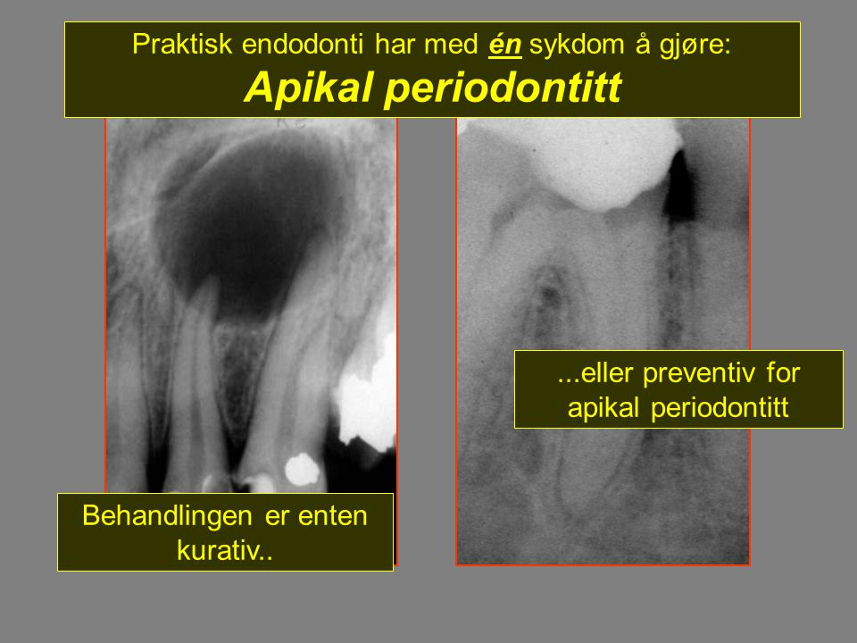 Praktisk endodonti har med én sykdom å gjøre: Apikal periodontitt