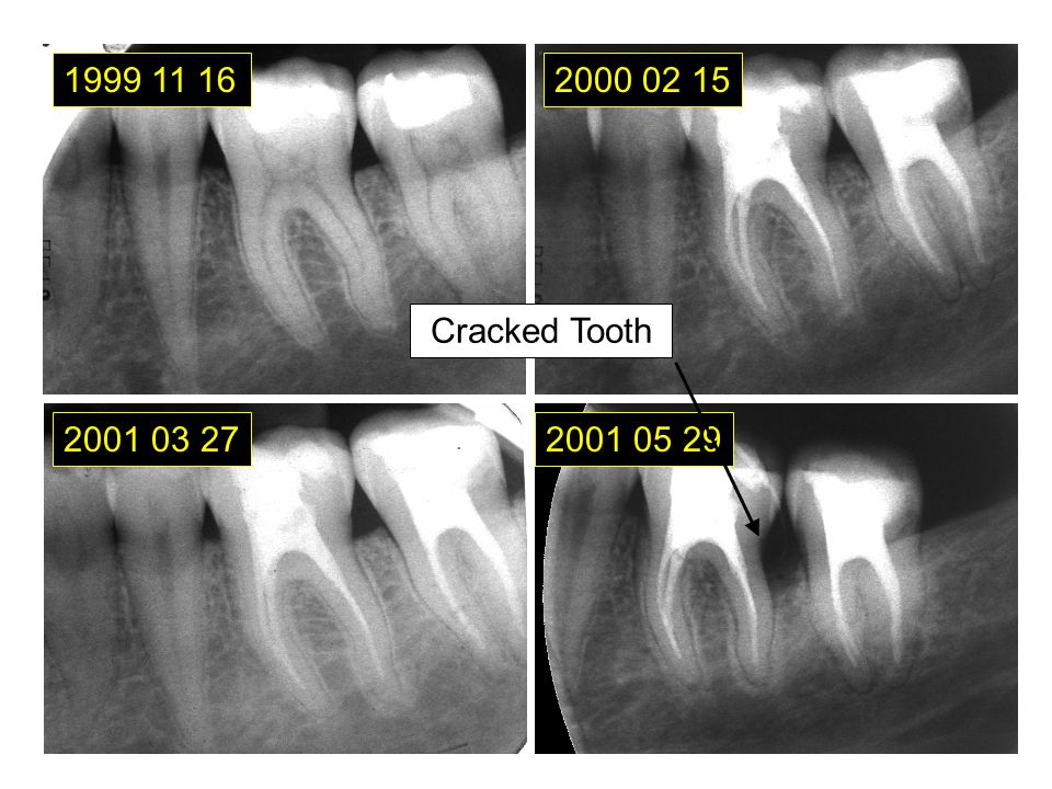 1999 11 16 2000 02 15 Cracked Tooth 2001 03 27 2001 05 29