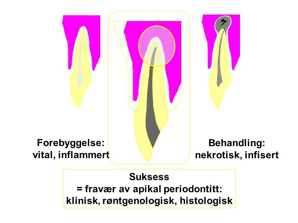 = fravær av apikal periodontitt: klinisk, røntgenologisk, histologisk