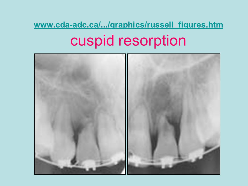 www.cda-adc.ca/.../graphics/russell_figures.htm cuspid resorption