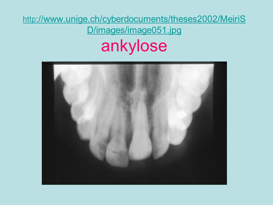 http://www.unige.ch/cyberdocuments/theses2002/MeiriSD/images/image051.jpg ankylose