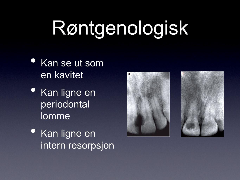 Røntgenologisk Kan se ut som en kavitet Kan ligne en periodontal lomme