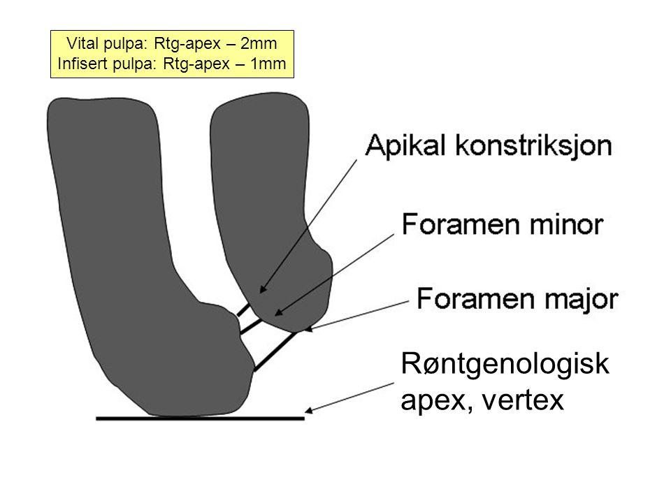 Røntgenologisk apex, vertex