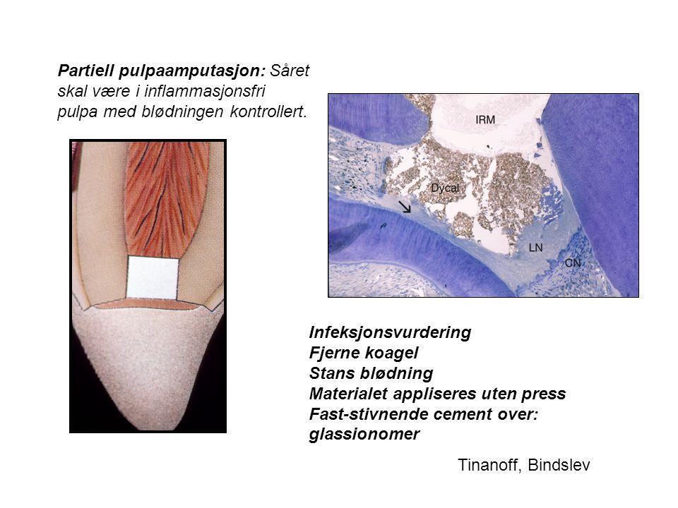 Partiell pulpaamputasjon: Såret skal være i inflammasjonsfri pulpa med blødningen kontrollert.