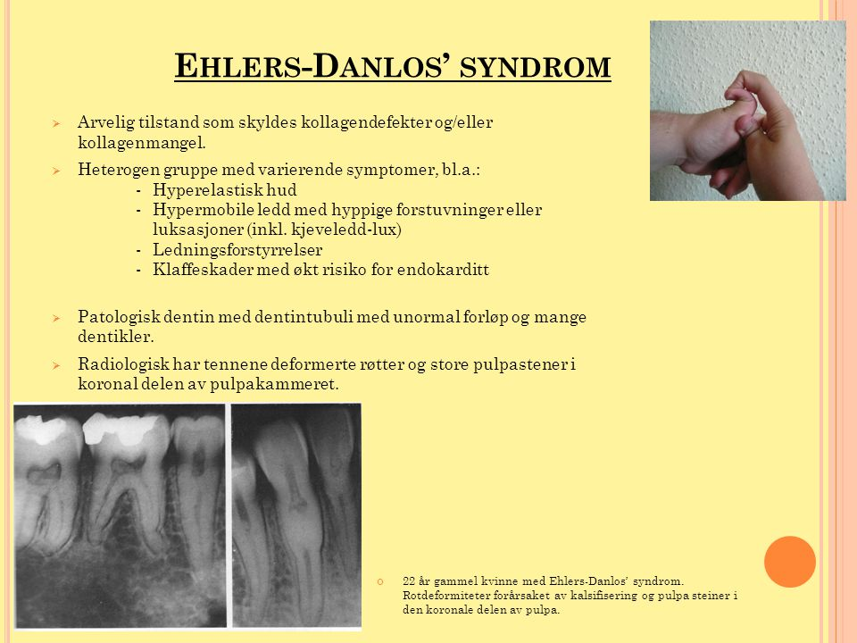 Ehlers-Danlos' syndrom