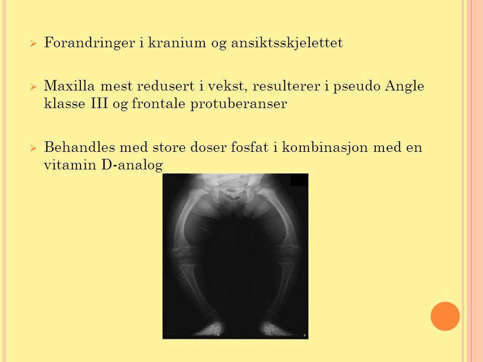 Forandringer i kranium og ansiktsskjelettet