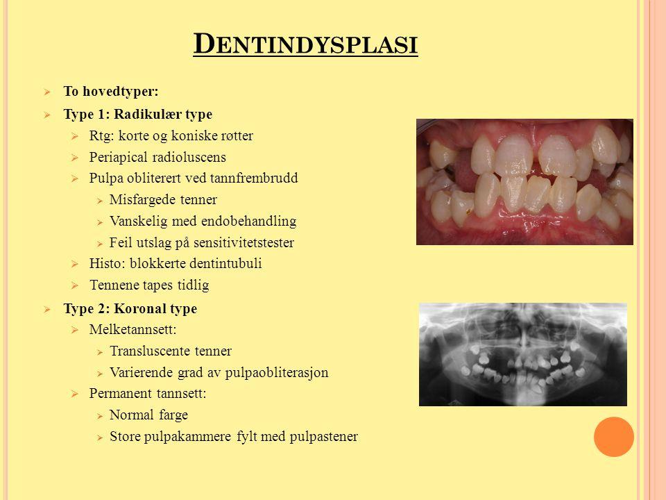 Dentindysplasi To hovedtyper: Type 1: Radikulær type