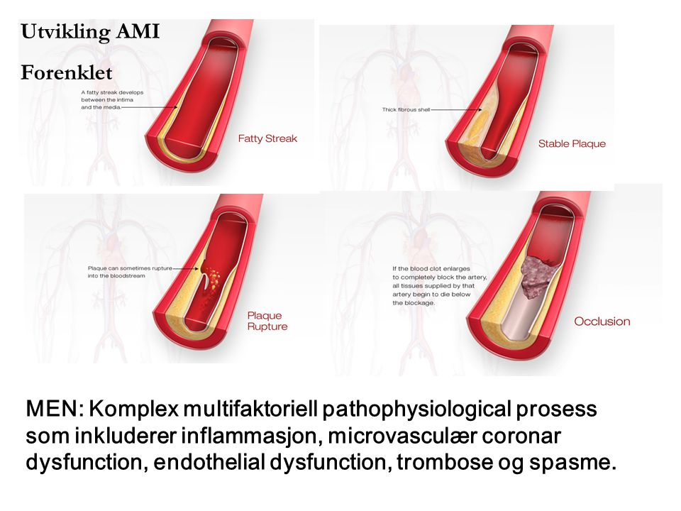 MEN: Komplex multifaktoriell pathophysiological prosess