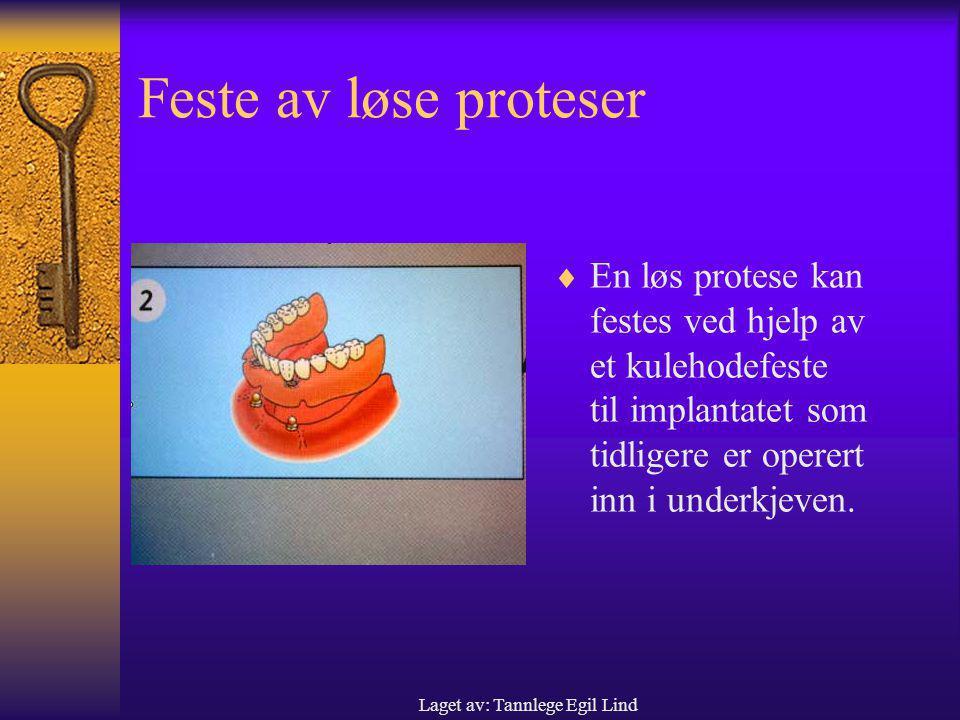 Laget av: Tannlege Egil Lind
