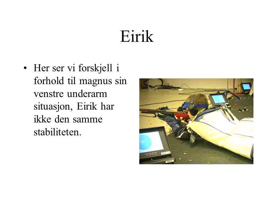 Eirik Her ser vi forskjell i forhold til magnus sin venstre underarm situasjon, Eirik har ikke den samme stabiliteten.