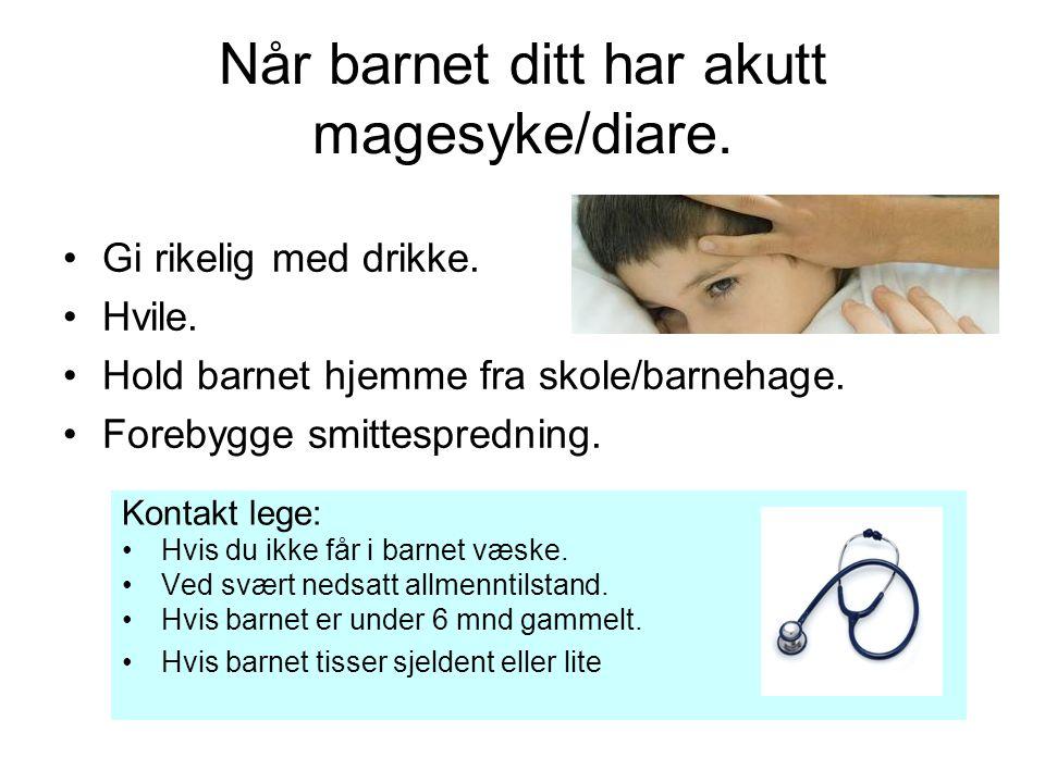 Når barnet ditt har akutt magesyke/diare.