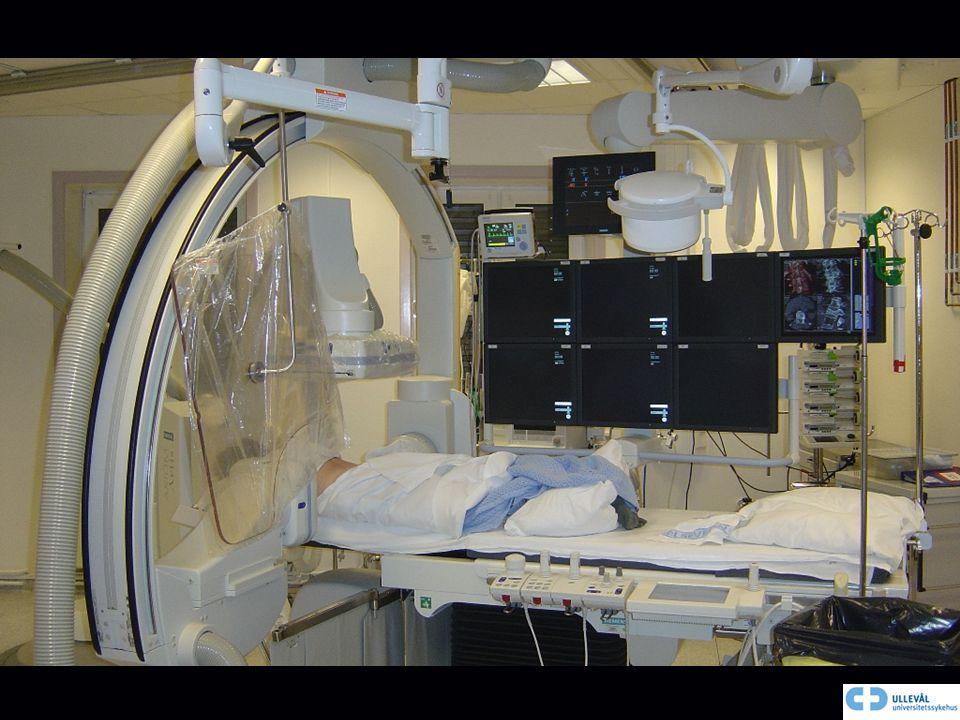 Vi har alle preoperative bilder som MR og CT oppe på skjermen i laboratoriet.
