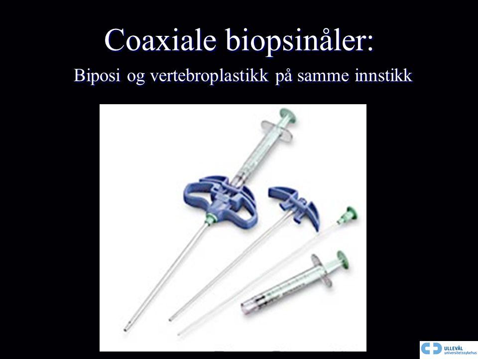 Coaxiale biopsinåler: Biposi og vertebroplastikk på samme innstikk