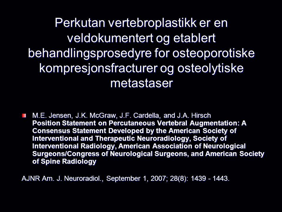 Perkutan vertebroplastikk er en veldokumentert og etablert behandlingsprosedyre for osteoporotiske kompresjonsfracturer og osteolytiske metastaser