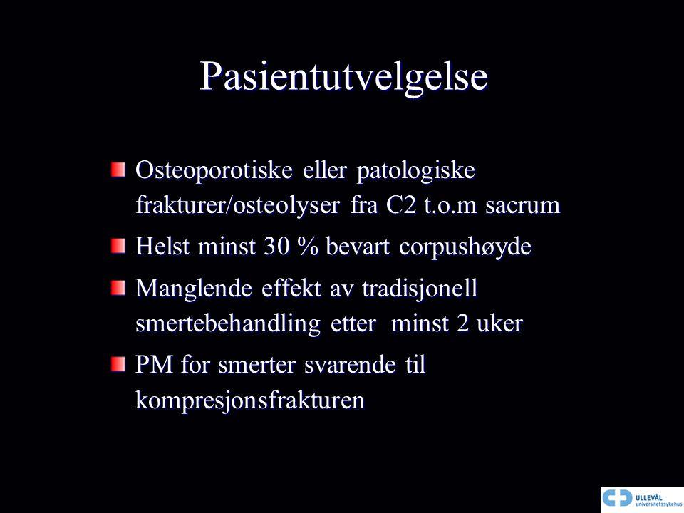 Pasientutvelgelse Osteoporotiske eller patologiske frakturer/osteolyser fra C2 t.o.m sacrum. Helst minst 30 % bevart corpushøyde.