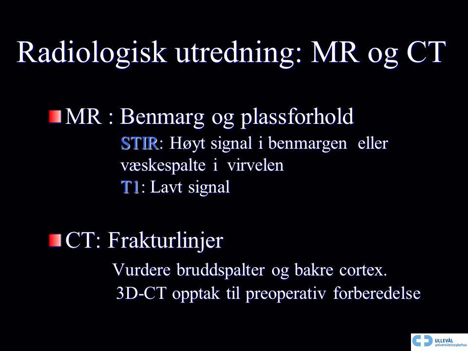 Radiologisk utredning: MR og CT