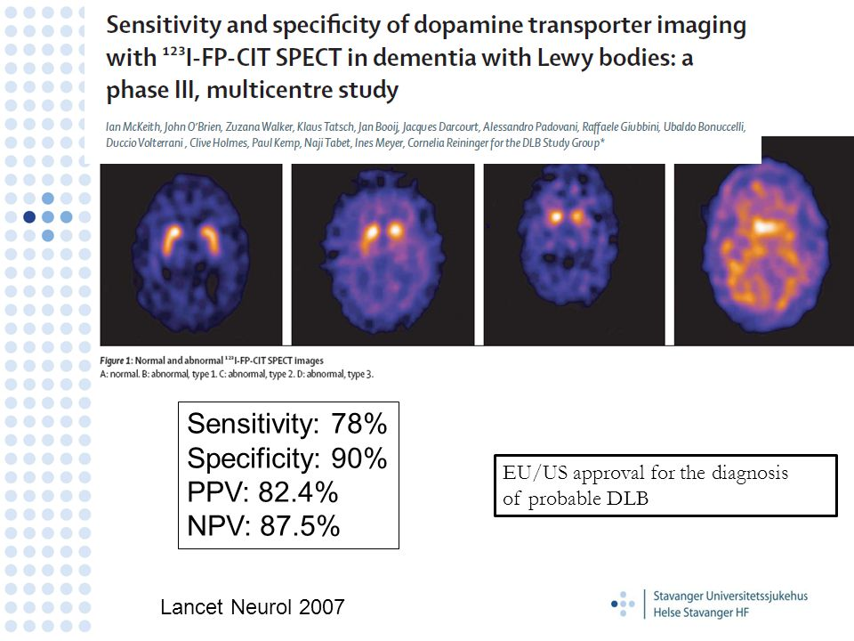 Sensitivity: 78% Specificity: 90% PPV: 82.4% NPV: 87.5%