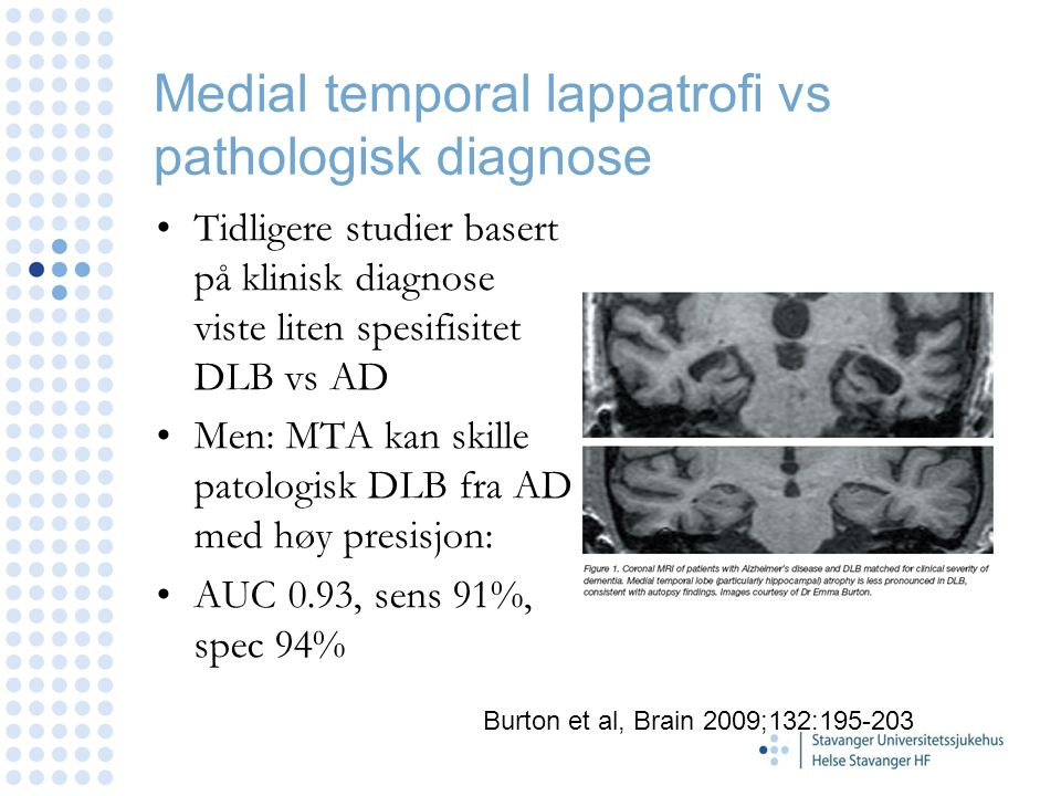 Medial temporal lappatrofi vs pathologisk diagnose