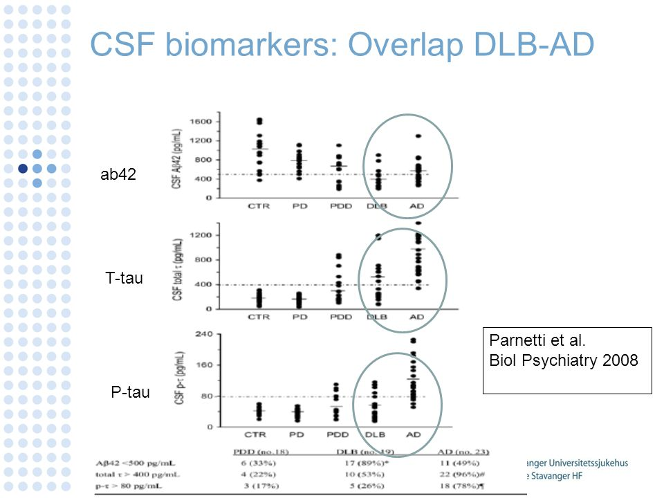 CSF biomarkers: Overlap DLB-AD