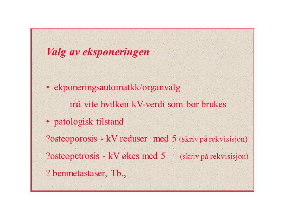 Valg av eksponeringen ekponeringsautomatkk/organvalg