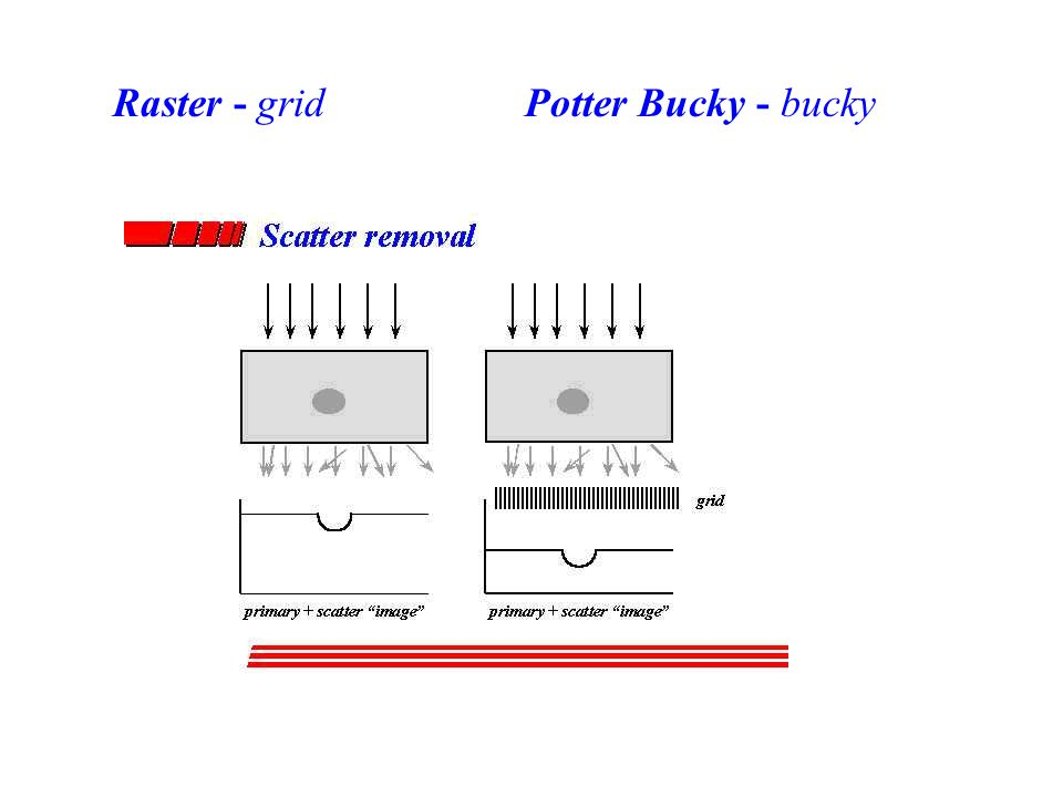 Raster - grid Potter Bucky - bucky