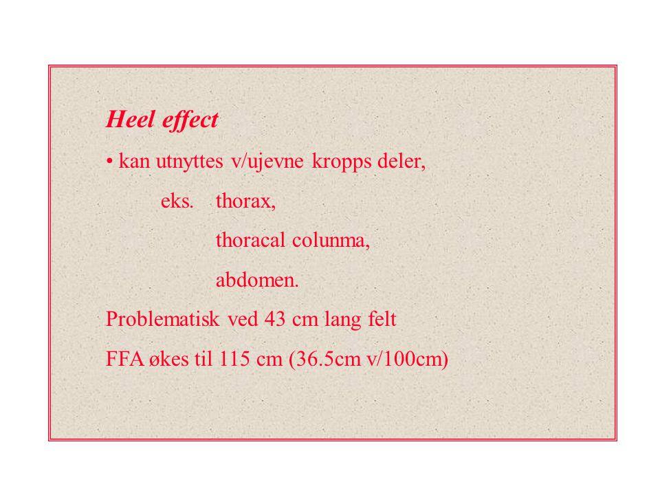 Heel effect kan utnyttes v/ujevne kropps deler, eks. thorax,