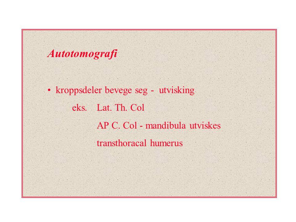 Autotomografi kroppsdeler bevege seg - utvisking eks. Lat. Th. Col
