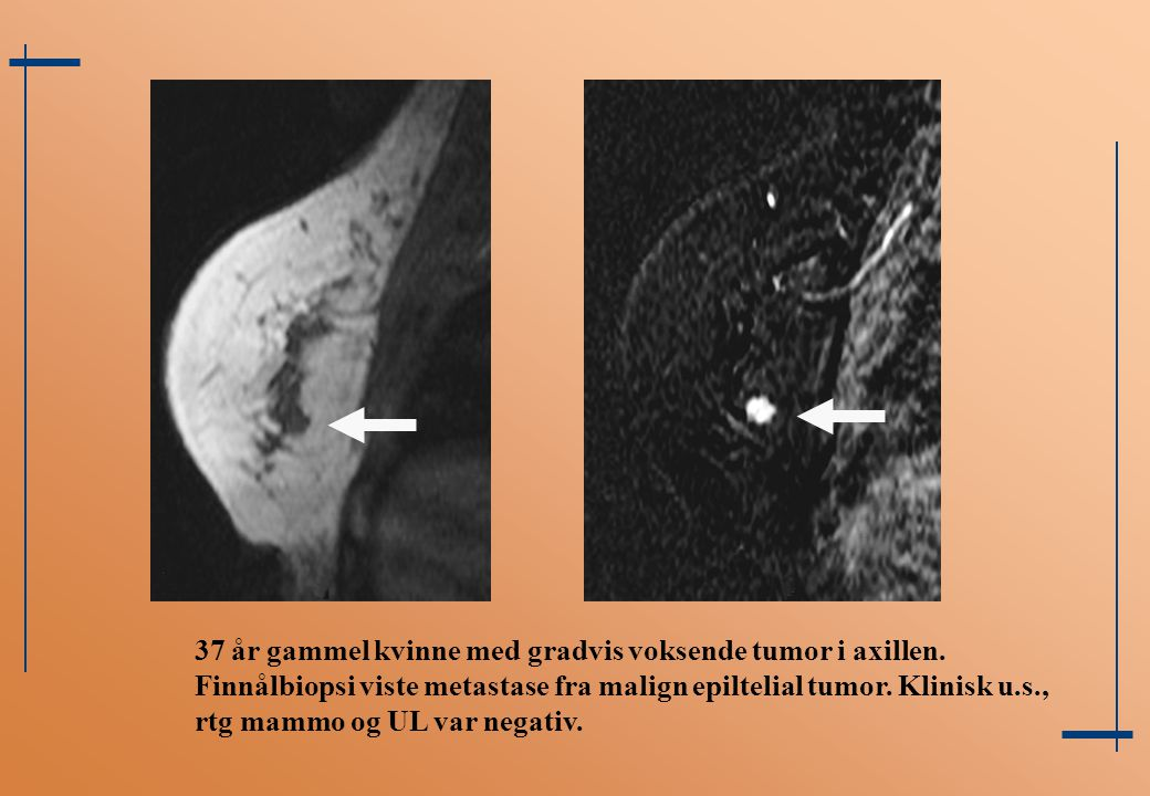 37 år gammel kvinne med gradvis voksende tumor i axillen