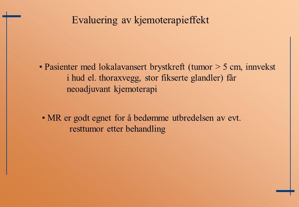 Evaluering av kjemoterapieffekt