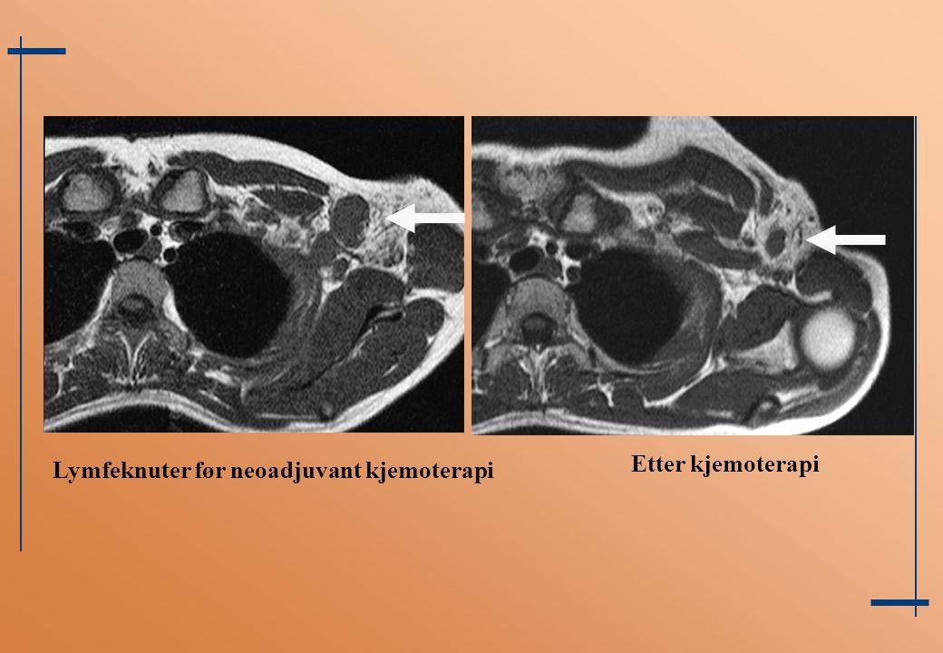 Etter kjemoterapi Lymfeknuter før neoadjuvant kjemoterapi