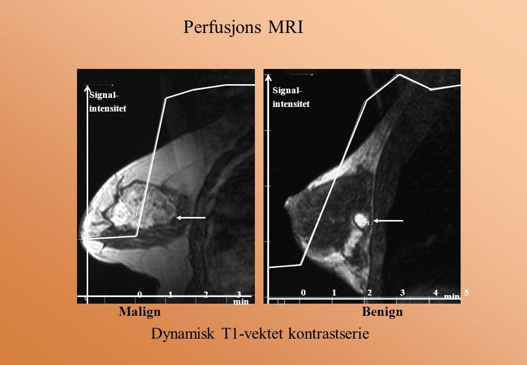 Perfusjons MRI Dynamisk T1-vektet kontrastserie Malign Benign Signal-