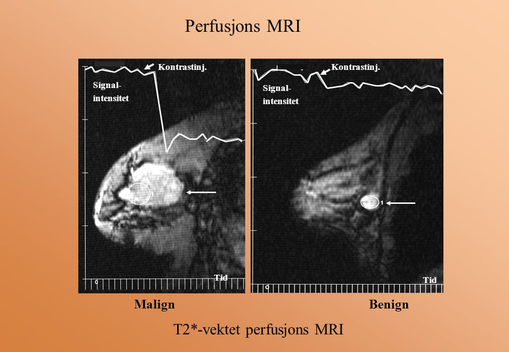 Perfusjons MRI T2*-vektet perfusjons MRI Malign Benign Kontrastinj.