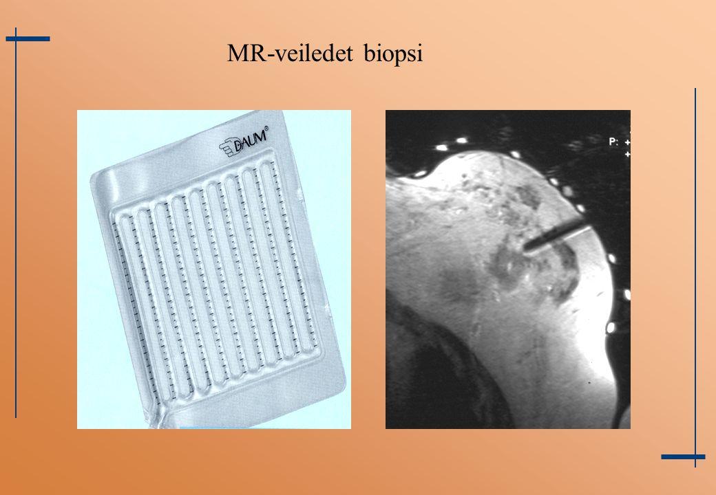 MR-veiledet biopsi