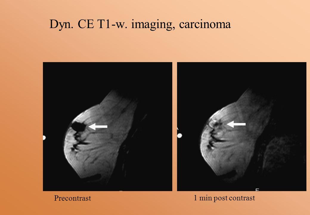 Dyn. CE T1-w. imaging, carcinoma