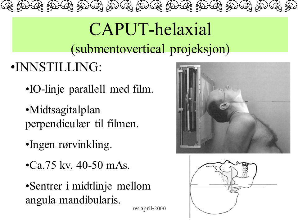 CAPUT-helaxial (submentovertical projeksjon)