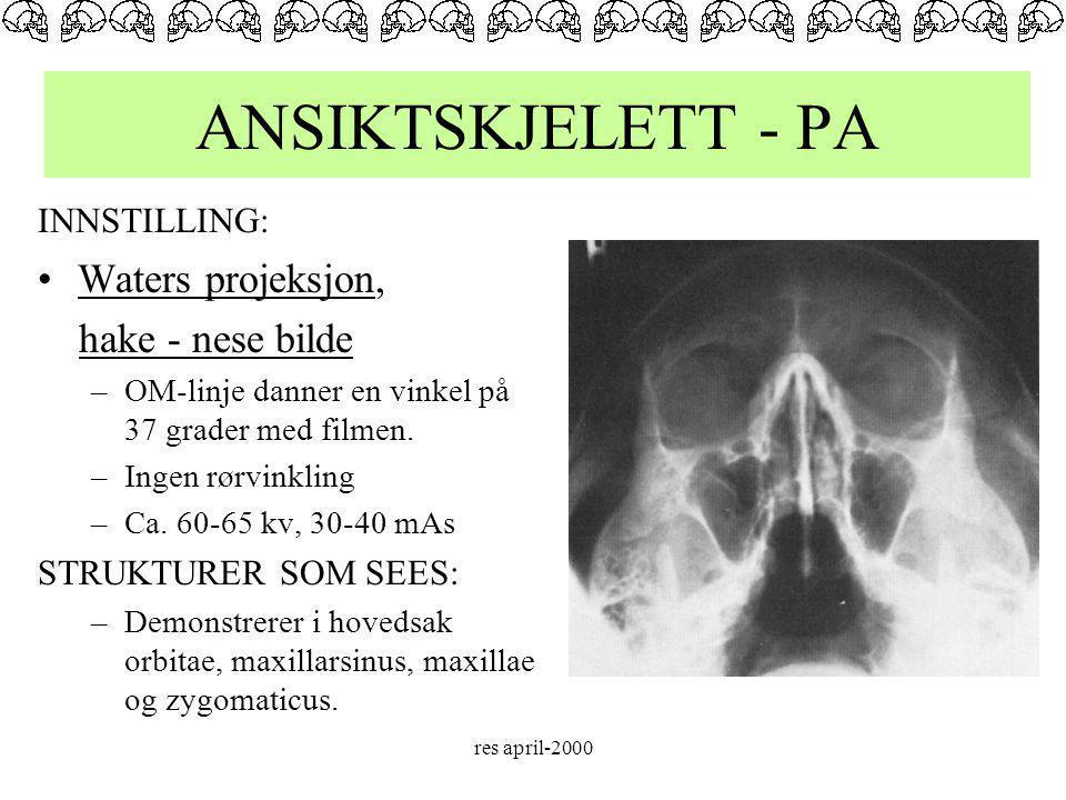 ANSIKTSKJELETT - PA Waters projeksjon, hake - nese bilde INNSTILLING: