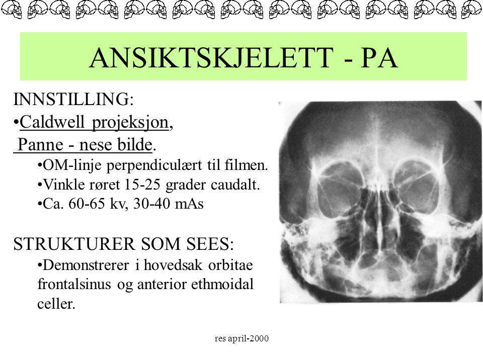 ANSIKTSKJELETT - PA INNSTILLING: Caldwell projeksjon,
