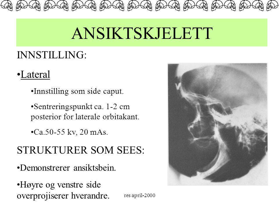 ANSIKTSKJELETT INNSTILLING: Lateral STRUKTURER SOM SEES: