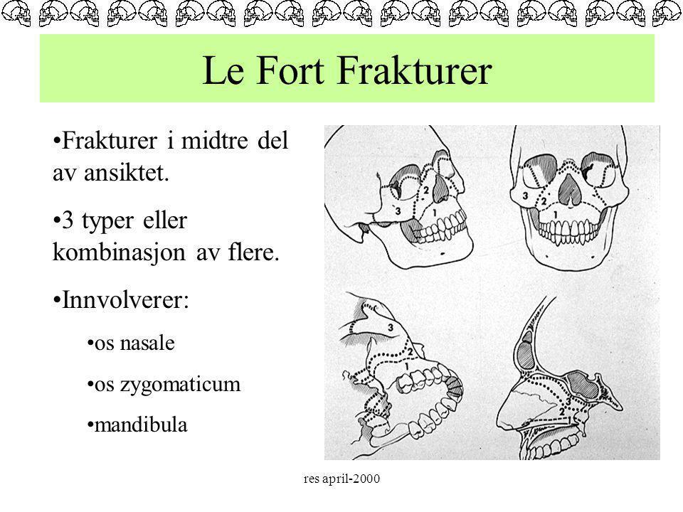 Le Fort Frakturer Frakturer i midtre del av ansiktet.