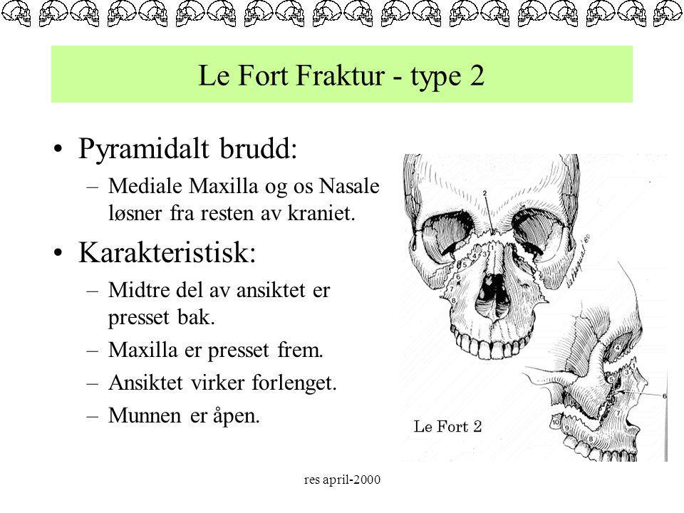 Le Fort Fraktur - type 2 Pyramidalt brudd: Karakteristisk: