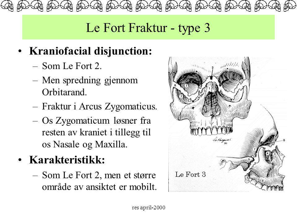 Le Fort Fraktur - type 3 Kraniofacial disjunction: Karakteristikk: