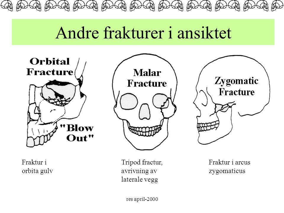 Andre frakturer i ansiktet